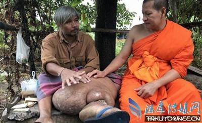 泰国男子居然长出了大象腿,盘点长出象腿的案例