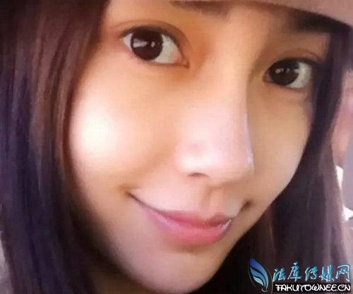 女人双眼皮多宽才最好看?未成年人的单眼皮会自然变双吗?