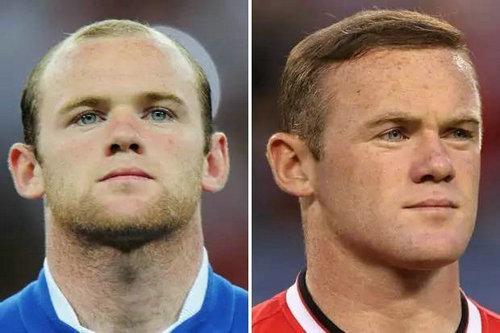 为什么英国人那么多秃顶?英国喜欢人戴假发是因为秃顶吗?