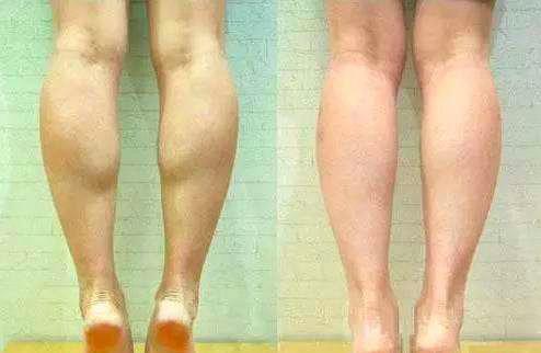 女性跑步健身时如何防止腿部长出肌肉?肌肉腿和脂肪腿最简单的区别办法