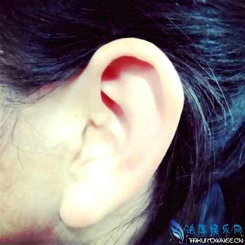 为什么有的人耳朵会动?耳朵不能动是遗传吗?
